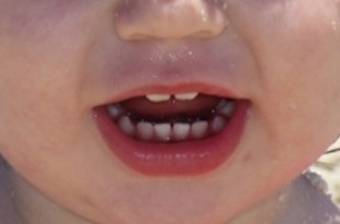 baby's mouth showing teeth